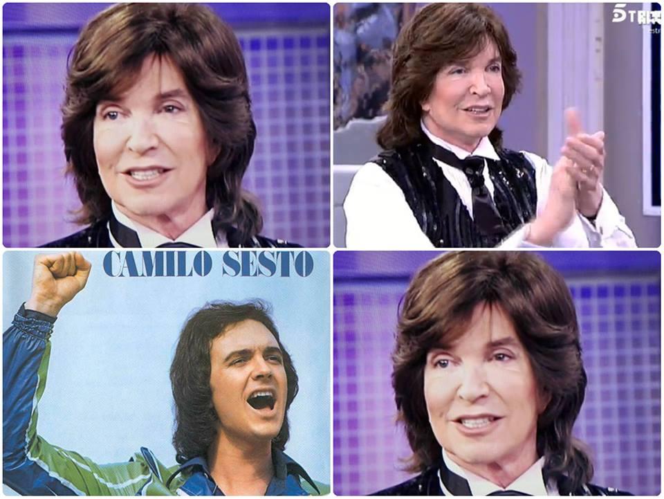 Camilo Sesto Antes Y Despues