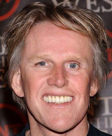 gary busey plastic surgery before and after facelift and