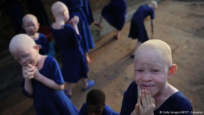 La tragedia de los albinos en Tanzania