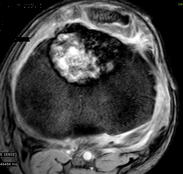 chondroblastoma radiology - photo #17