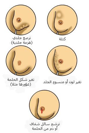 كشف مرض سرطان الثدي