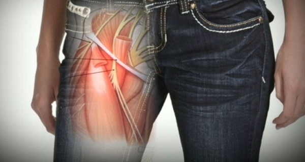 Fashion Trend Might Cause Nerve Damage:Tight Skinny Jeans Health Risk