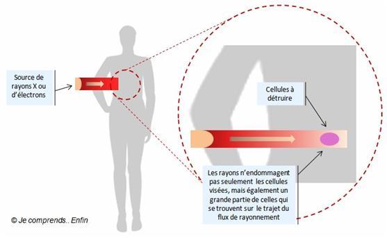 cancer du sein effet secondaire