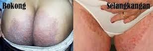 Obat Gatal Selangkangan Dan Pantat