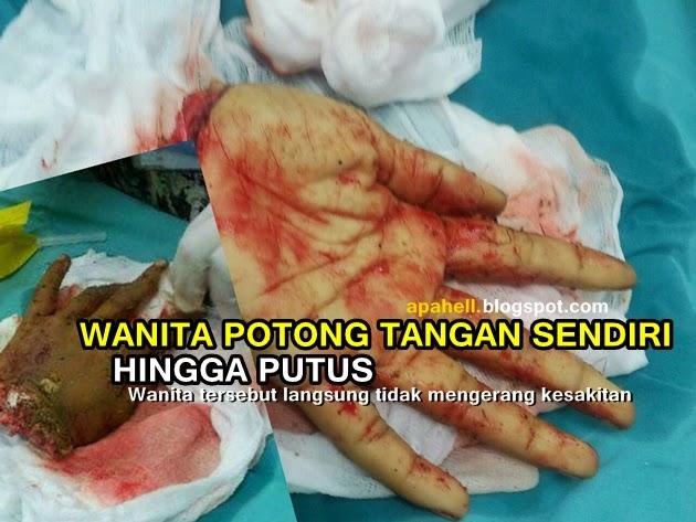 Ngeri! Gambar Tangan Wanita Yang Dipotong (2 Gambar)
