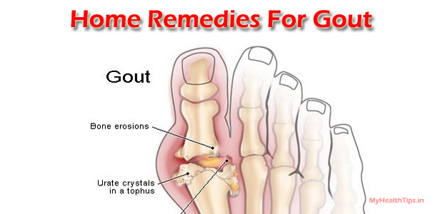 garlic for high uric acid herbal medication for uric acid