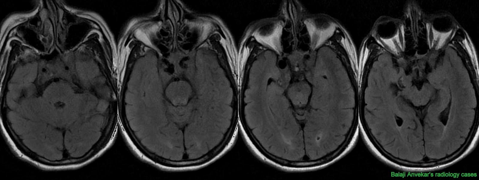 Aneurysm Mri Cerebral Mycotic Aneurysm Mri