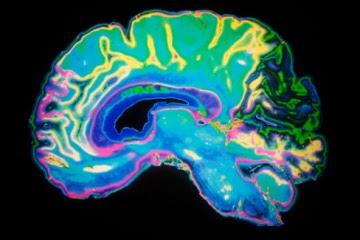 las patologías más extraordinarias del cerebro