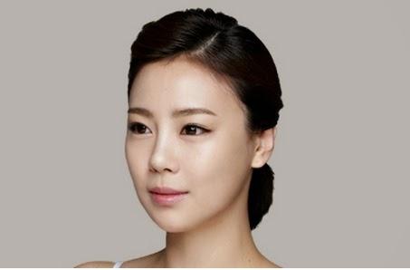 Setelah koreksi tulang pipi dan kontur wajah di Wonjin