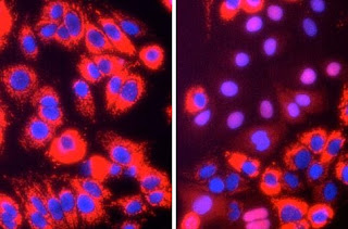 Lab-Grown Hepatitis C Could Give New Treatment Strategies