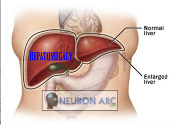 Causes of Hepatomegaly: Hard tender enlarged liver