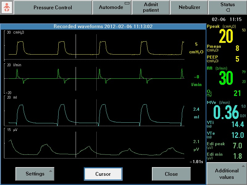 K. Scott Richey: Quantifying Patient Ventilator Asynchrony