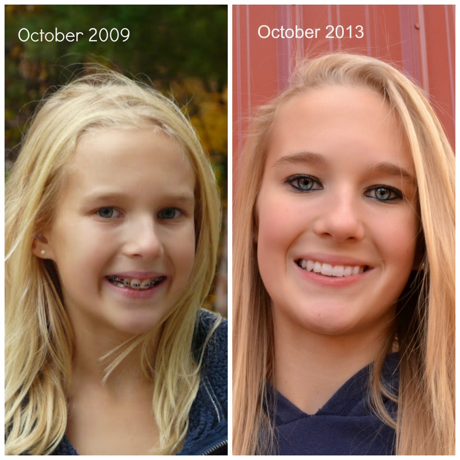 Braces adults before and after
