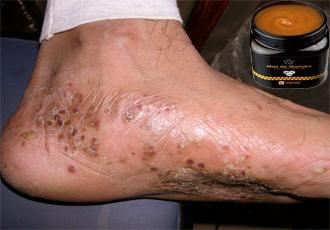 La crème de défense de soleil à atopitcheskom la dermatite