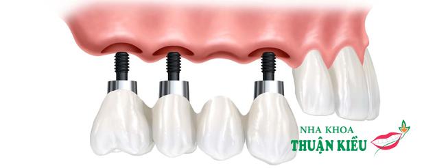 Cấy ghép Implant có thể tồn tại trong bao lâu?