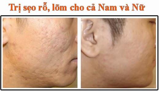 Trị sẹo rỗ và lõm tại Doctor Kiệm Spa
