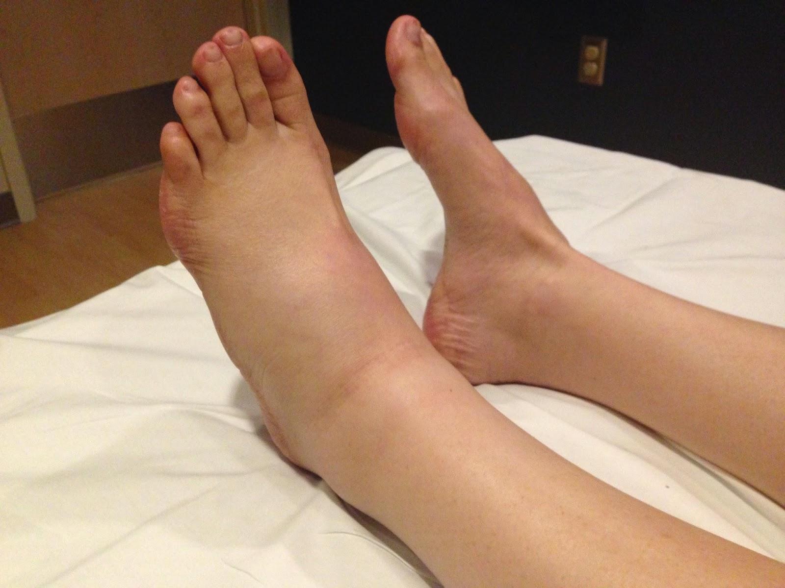 Почему отекают ноги и руки по утрам