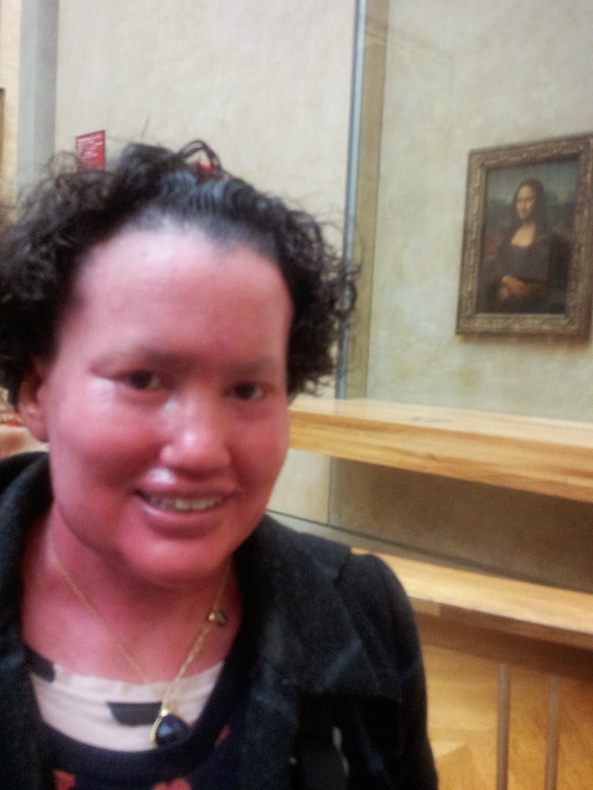 Carly Findlay in front of the Mona Lisa, the Louvre