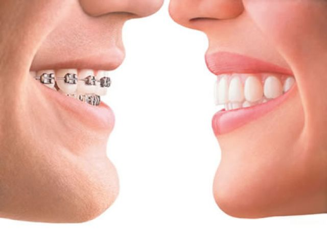 Dental And Oral Cleansing Food