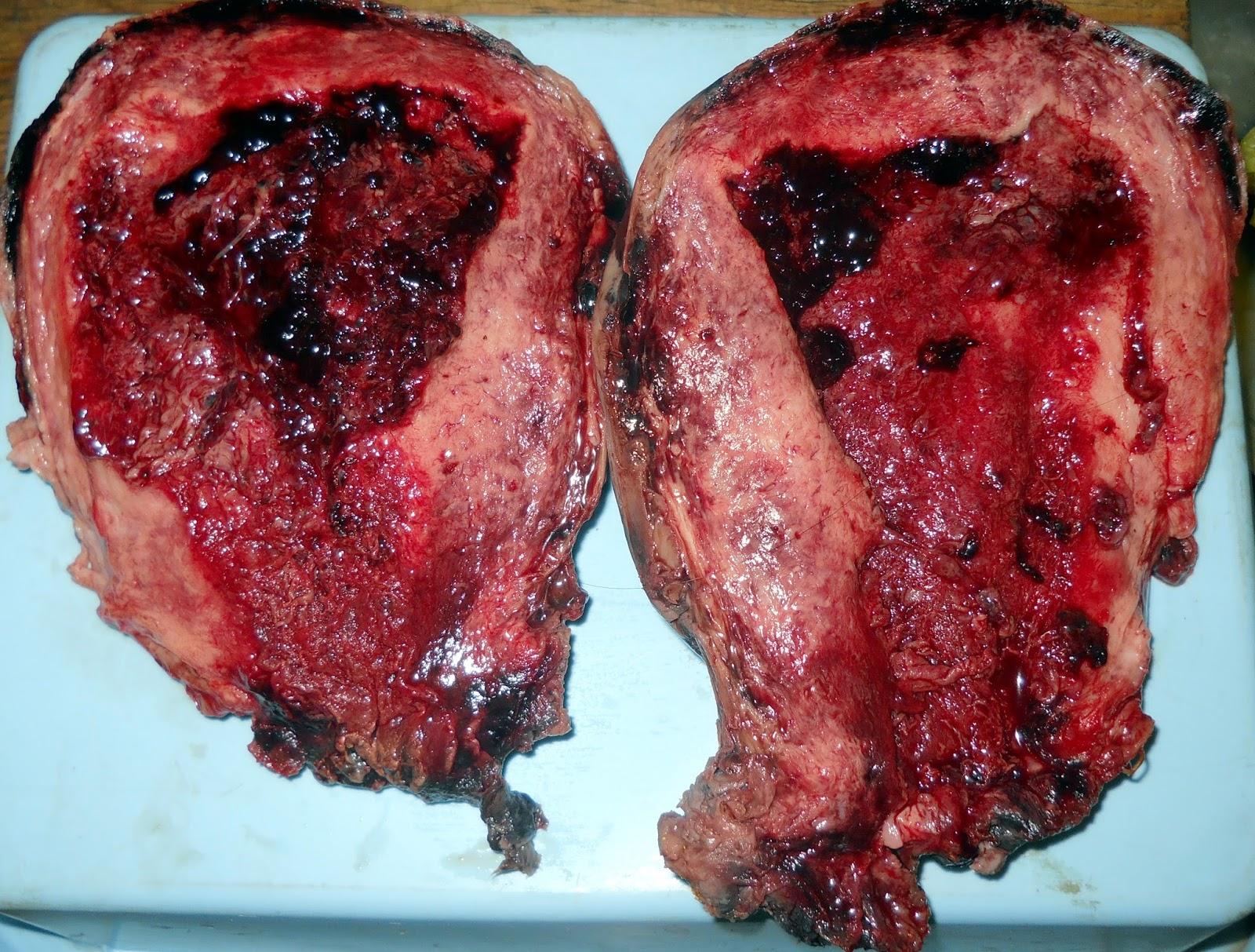 Anatomía Patológica: Caso anatomoclínico obstétrico. Útero de ...