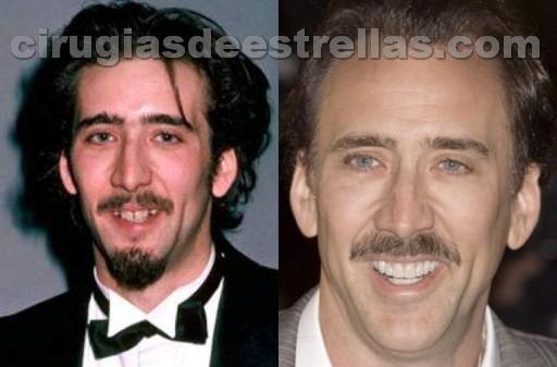 Nicolas Cage antes y después
