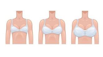 Cómo-aumentar-su-tamaño-del-pecho-rápida-y-naturalmente-en-casa-en-3-sencillos-pasos-y-sin-cirugía