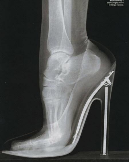 Radiografía de un pie en taco alto