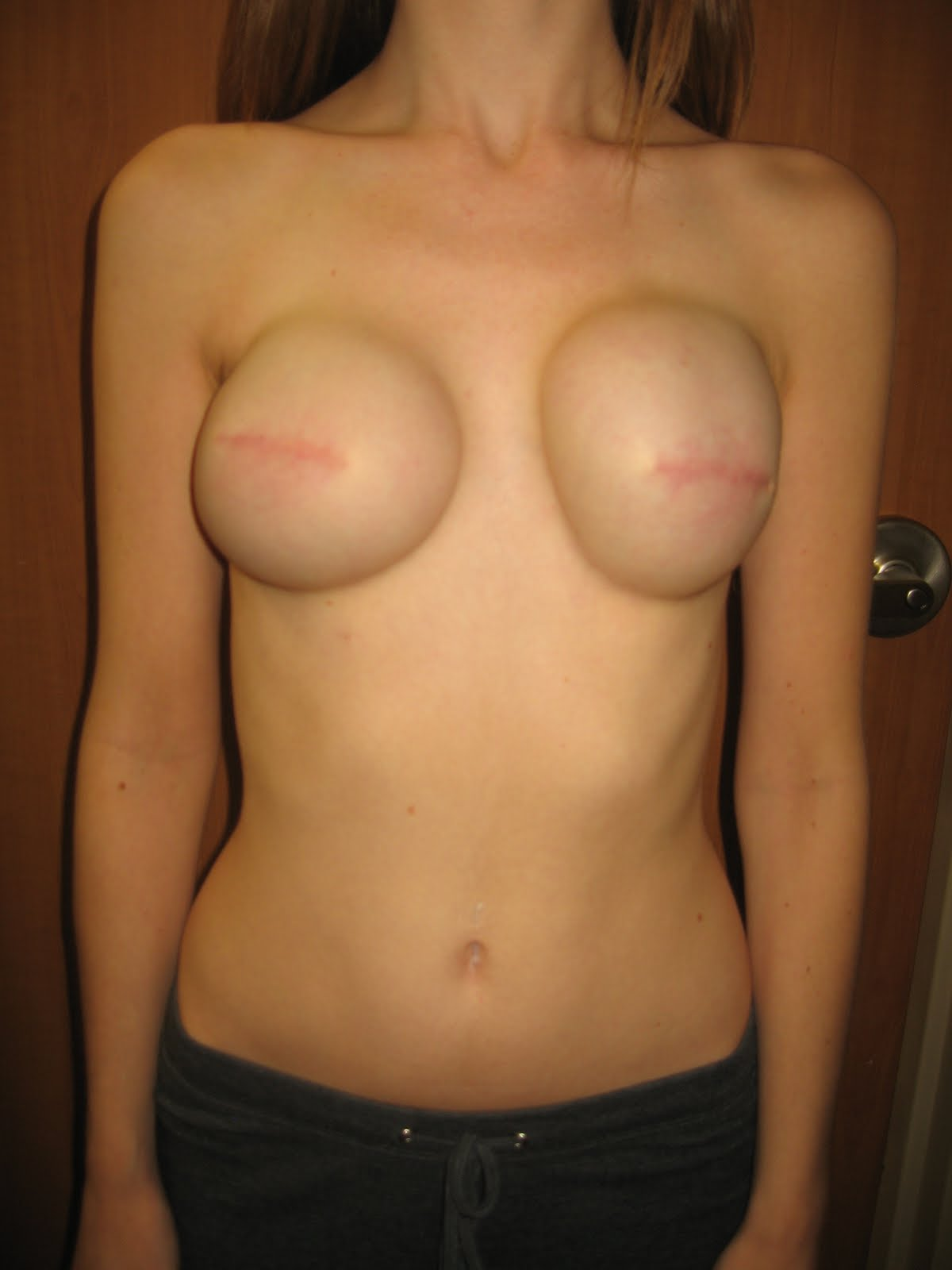 naked girl with breast implants