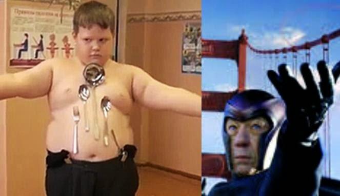 """Bocah Rusia ini Jadi """"Magneto"""" Setelah Kena Setrum"""