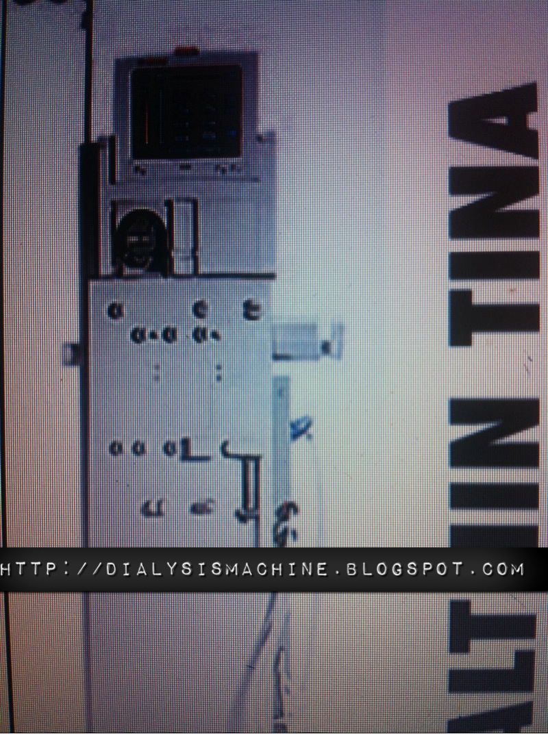 dialysis machine  althin dialysis machine