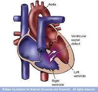 Ventrikular Septal Defek (VSD), Blog Keperawatan