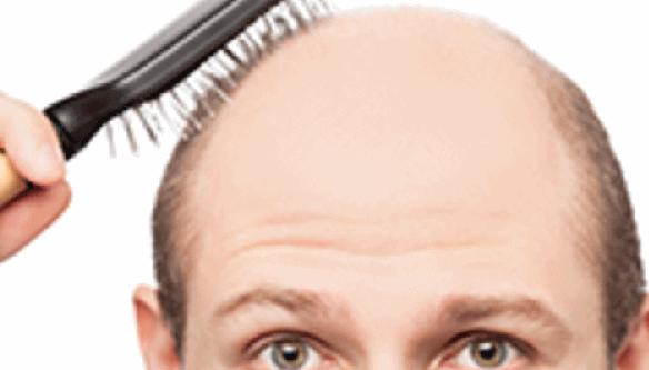 सुन्दर बालों के लिए मेहँदी का उपयोग