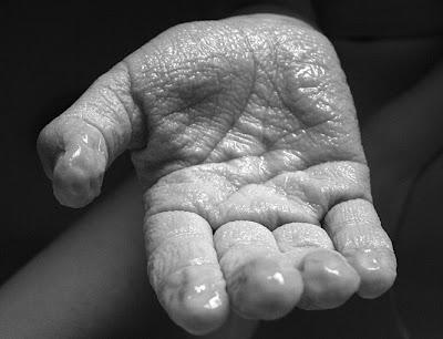 tahukah kamu Kenapa Tangan Keriput Kalau Lama di Air?
