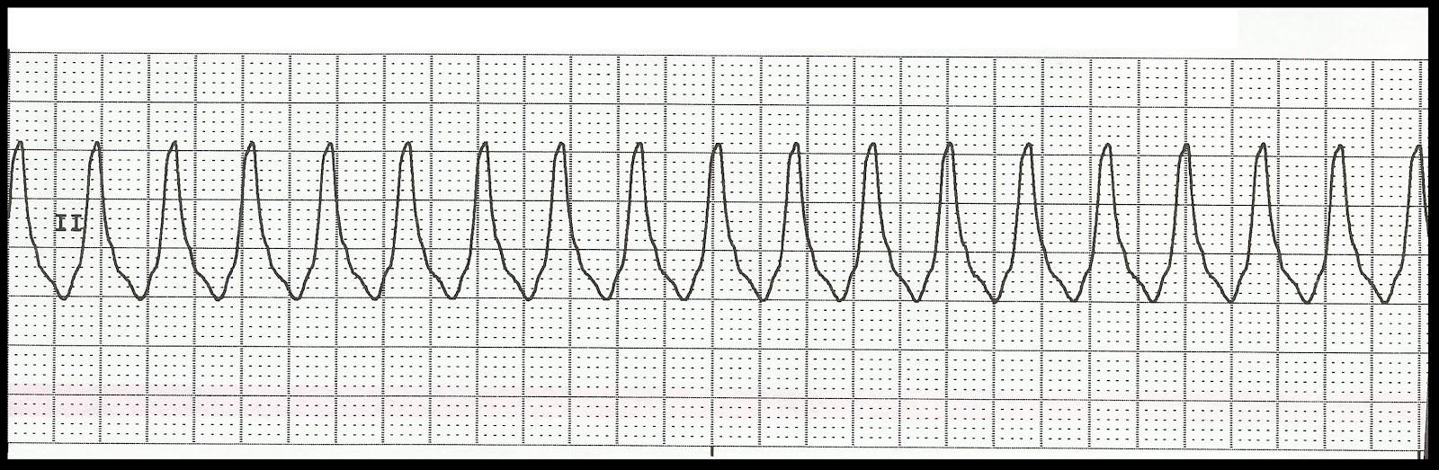 Float Nurse: EKG Rhythm Strip Quiz 126 Ventricular Tachycardia Rhythm Strip