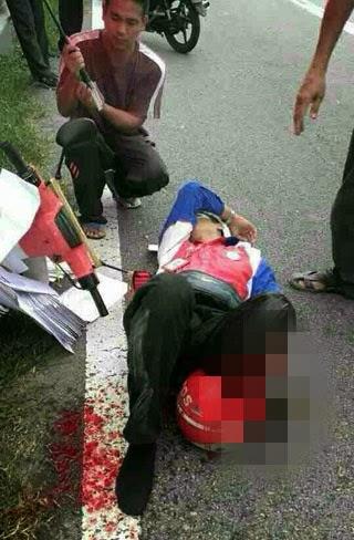 Punca kemalangan yang melibatkan seorang posmen dan menyebabkannya putus kaki