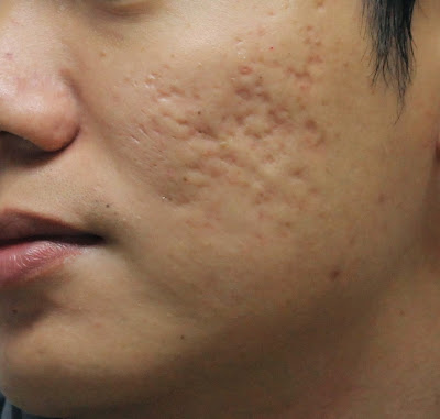 How to remove acne and its scars with Natural Ways Acne scars reducing mask Treatment with neem leaves paste tips and masks face massage