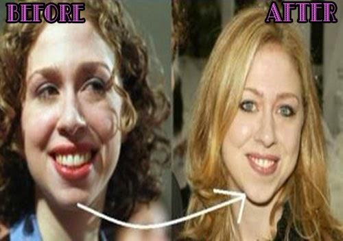 Chelsea clinton had facial surgery