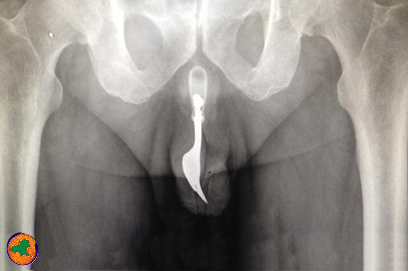 Секс влагалище во время него фото, Огромный пенис во влагалище красотки 1 фотография