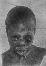Exposed: Prosecute Tuskegee Experiment Murderers