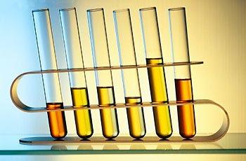 Exame de urina cultura