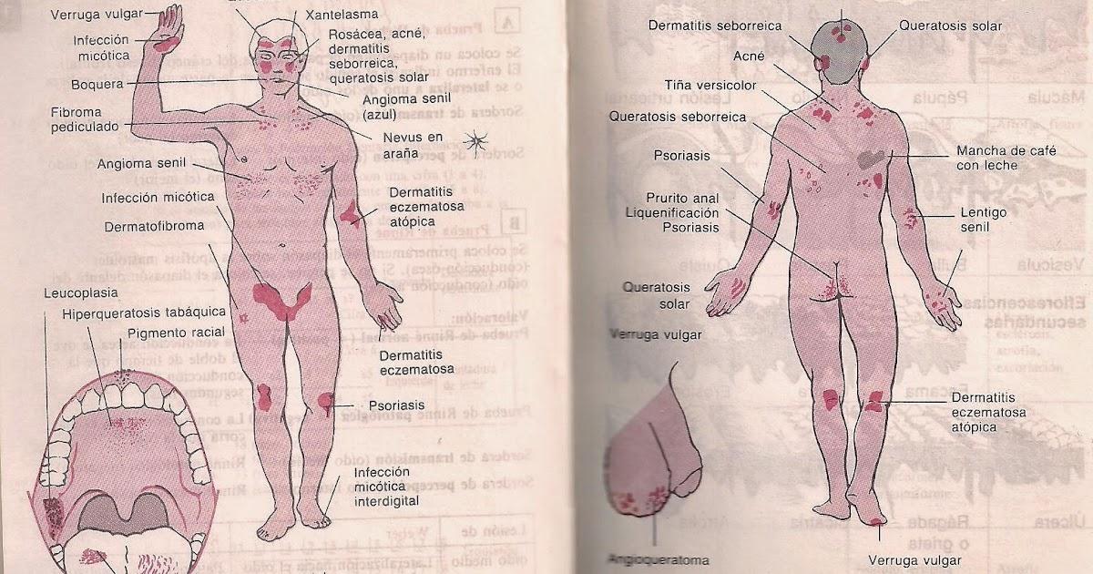 Las semillas del lino en el tratamiento de la psoriasis