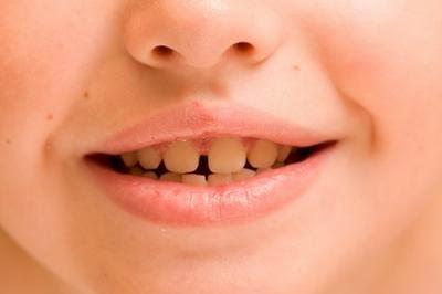 penyebab gigi kuning pada balita