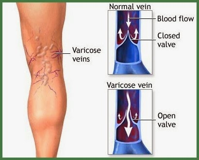 How To Naturally Improve Varicose Veins
