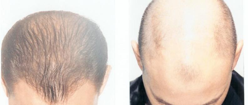 Contre la chute des cheveux le prix dans la pharmacie