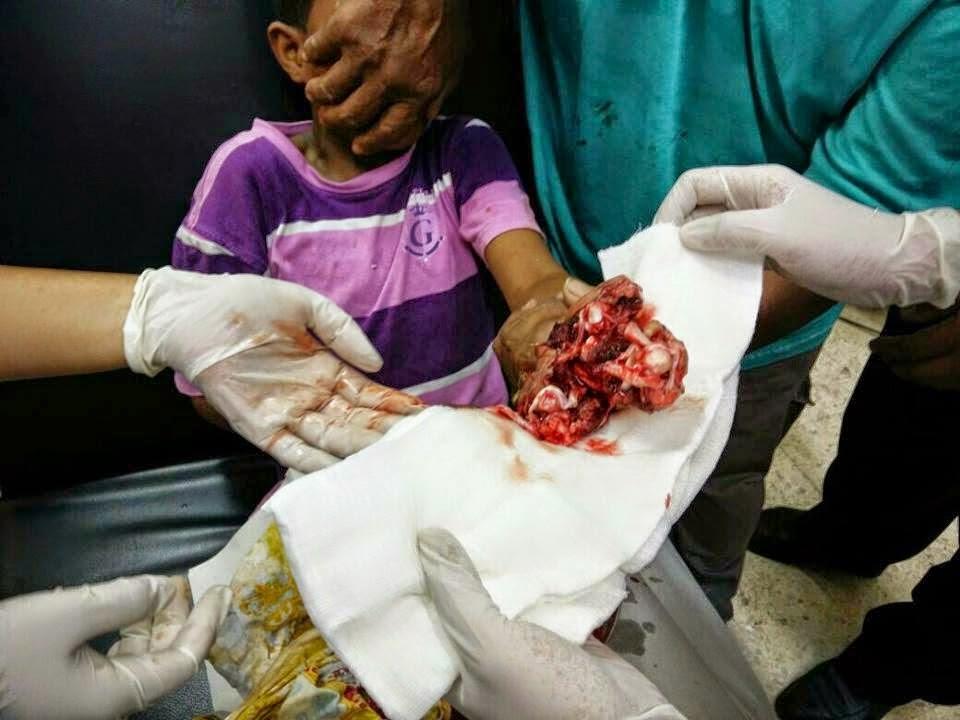 3 Gambar Tangan Budak 3 Tahun Hancur Kerana Mercun