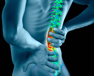 5 Nanda Diagnosis for Low Back Pain