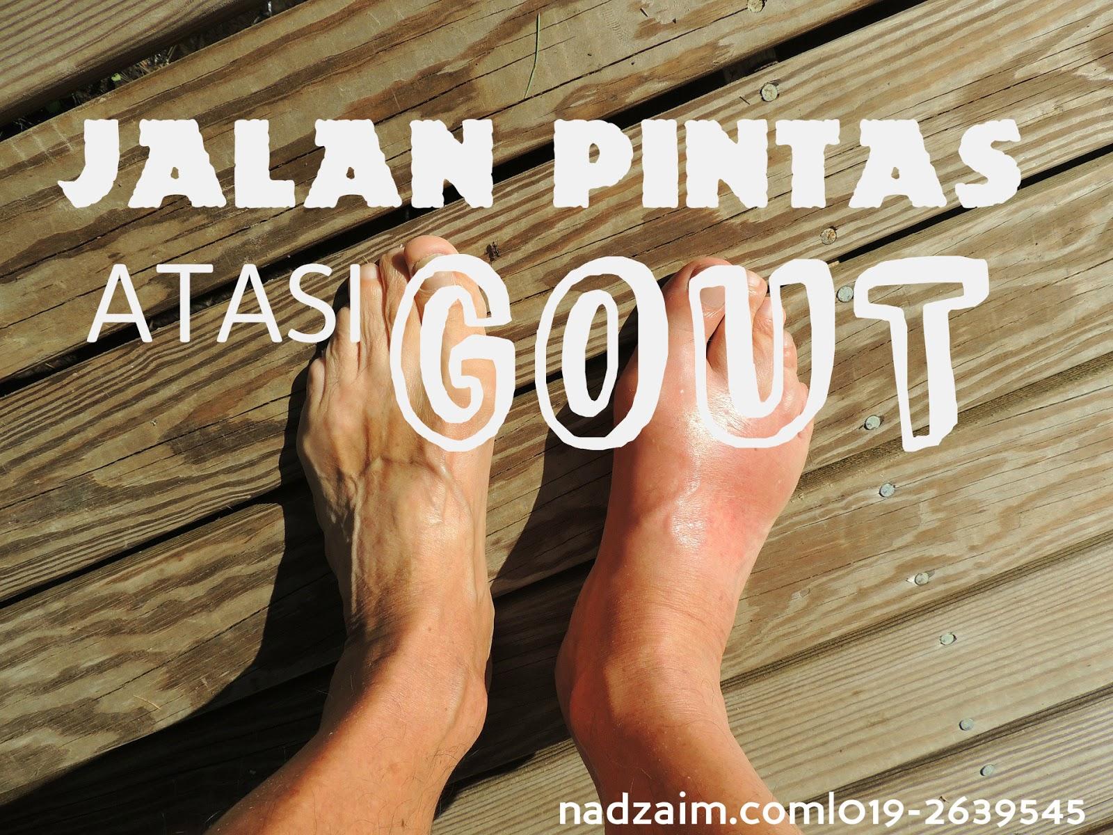 Gout Arthritis: Gejala, Penyebab, Diagnosis dan Pengobatan