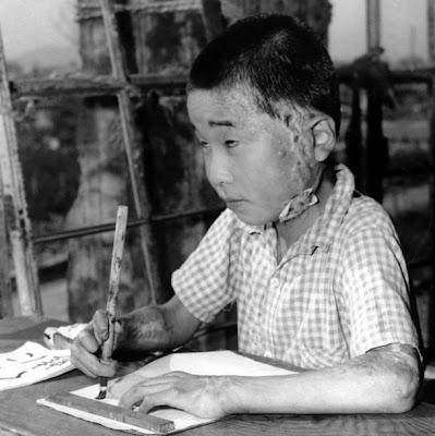 upi photo boy survivor hiroshima