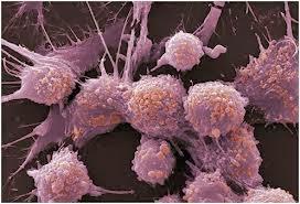 http://obatlimfomaherbal.blogspot.com/2013/11/obat-alami-tumor-ganas.html