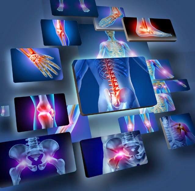 青少年における慢性疼痛に対する神経筋トレーニングアプローチ